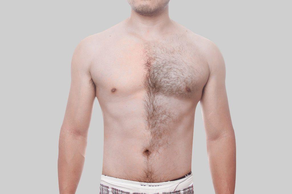 Risultati di trattamento di Epilazione Laser su Torace Maschile