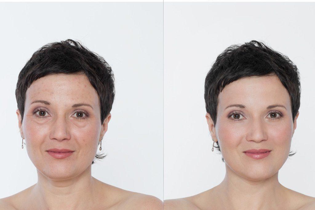 Effetti di un trattamento ringiovanente su macchie della pelle