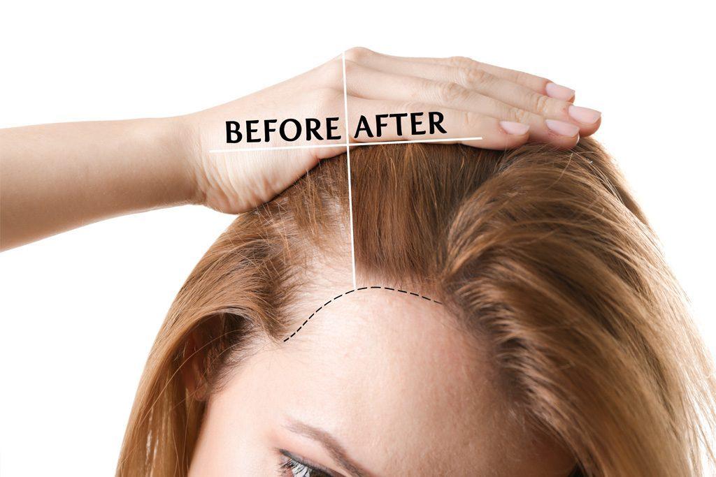 Risultati di un trattamento di rinfoltimento capelli