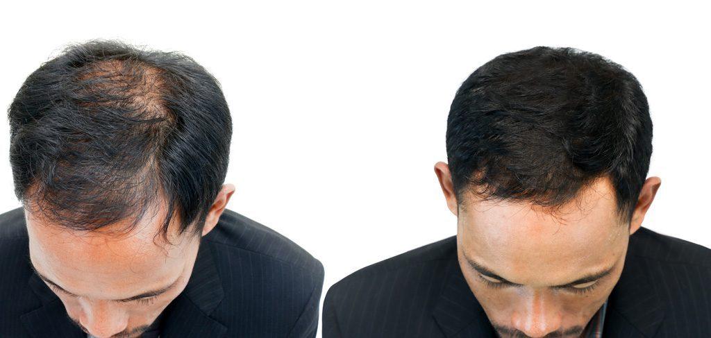 Prima e dopo il trattamento tricologico